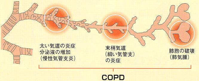 肺気腫 慢性